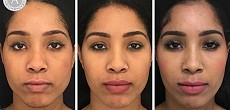 Jaw slimming, anti wrinkle and cheek augmentation and tear trough